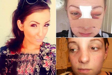 عکسی از دختری که با کتک خوردن معروف شد