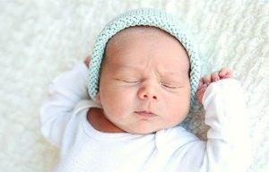 ختنه نوزاد در بدو تولد