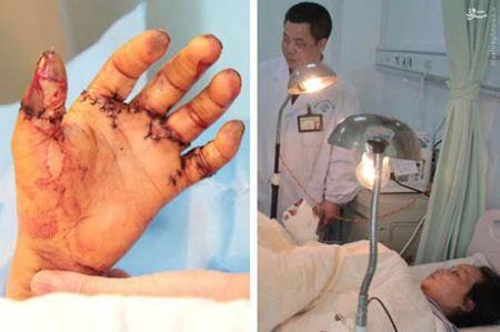 10 انگشت قطع شده دست این کارگر پیوند زده شد (تصاویر 16+)