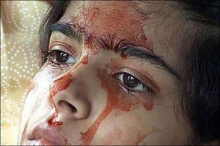 دختری که به جای اشک، خون از چشمانش می آید + تصاویر