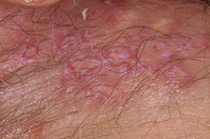 تبخال تناسلی چگونه انتقال می یابد + درمان تبخال تناسلی