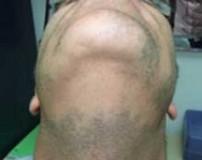 علت رشد نکردن ریش و سبیل در مردان + راه های درمان