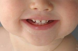 آیا خمیر دندان برای کودک زیر 3 سال مضر است؟