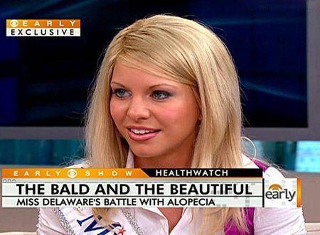 خوشگل ترین دختر جهان که کچل است + تصاویر