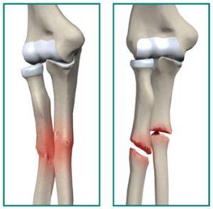 7 علامت شکستگی استخوان + درمان