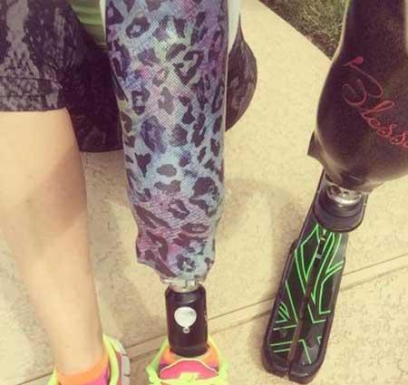 دختری که با پای مصنوعی در دو ماراتون شرکت کرد