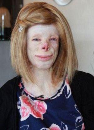 دختری با چهره وحشتناک و زشت