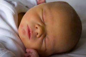 علت و روش درمان قطعی و سریع زردی نوزاد