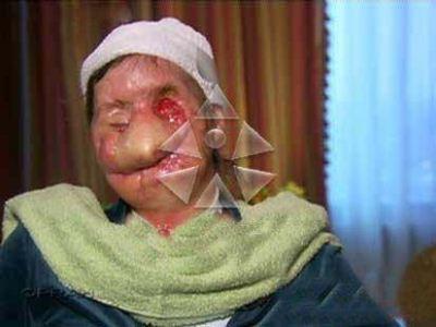 حمله میمون به یک زن میانسال به قصد تجاوز