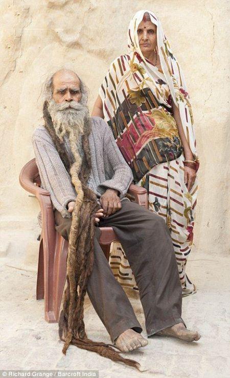 پلشت ترین مرد جهان با یک کیلو ریش و پشم