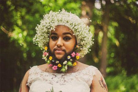 دختر 23 ساله ریش و سبیل دار عروس شد (عکس)