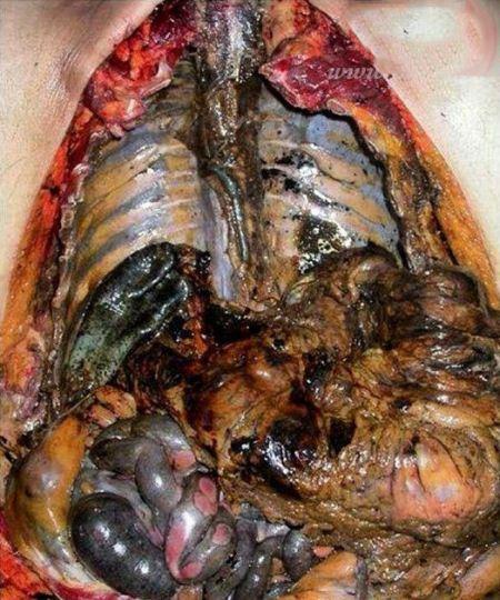 دل و روده مردی که با جوهر نمک خودکشی کرد (18+)