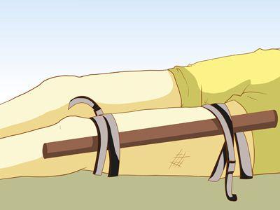 آموزش اصولی بستن آتل به دست یا پای شکسته