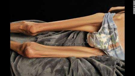 لاغرترین زن جهان به وزن 18 کیلوگرم + تصاویر