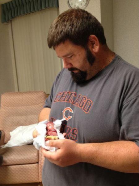 تصاویر دیدنی از تولد جنین 5 ماهه