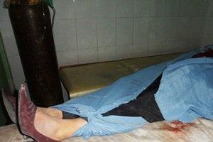 کشف جسد از کمر به پایین یک زن در میدان شوش تهران