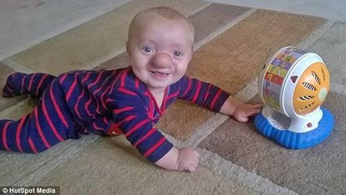 رشد بینی این پسر کوچولو هیچگاه متوقف نمی شود + تصاویر