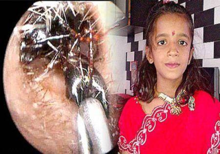 لانه مورچه های زنده در گوش این دختر 12 ساله است + تصاویر