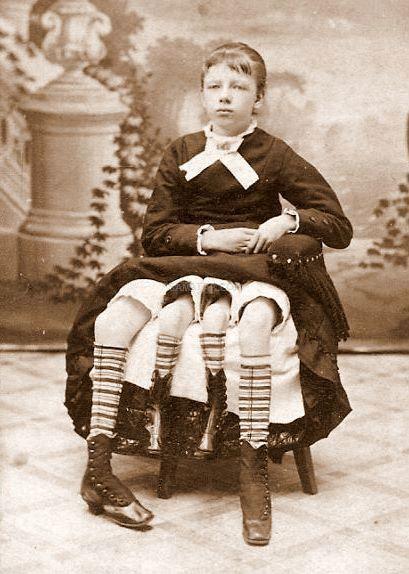 انسان های ناقص الخلقه و عجیب و غریب در طول تاریخ + تصاویر