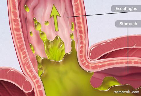 مواد غذایی مضر برای رفلاکس معده   چه غذاهایی برای رفلاکس بد است