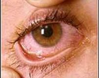 رفتن مژه در چشم و بیرون آوردن مژه از چشم