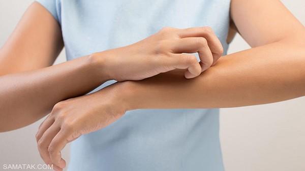 شما هم پوستتان در هنگام ورزش به خارش می افتد؟