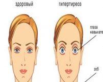 نوع خاصی از بیماری با نرمال نبودن سایز چشم