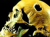چرا در قدیم جمجمه های افراد را سوراخ میکردند؟