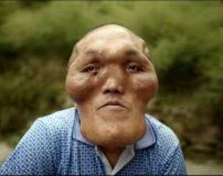 مردی که بزرگترین صورت دنیا را دارد (تصاویر 18+)