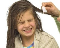 شپش سر کودک را چگونه درمان کنیم؟