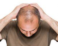 جلوگیری از ریزش مو با 14 ترفند طبیعی