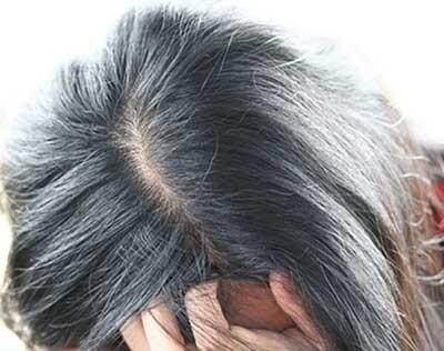 علت سفید شدن مو قبل از سن 35 سالگی