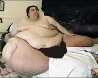 تصاویری از چاق ترین مرد جهان روی تخت بیمارستان
