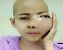 زیباترین دختر دنیا با یک تومور وحشتناک روی صورت + تصاویر