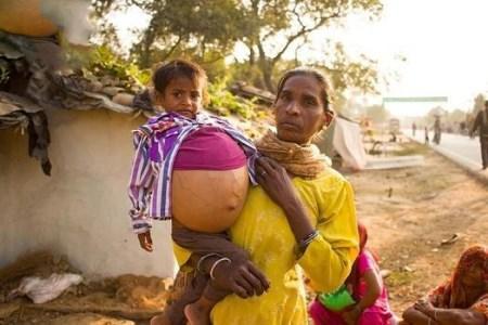 عکس های شکم دختر 3 ساله هندی که حامله است