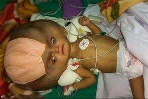 نوزاد 7 ماهه ای که سرش به اندازه سر فیل است + تصاویر