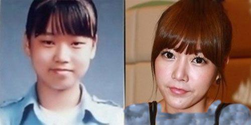 عکس بازیگران کره ای قبل از عمل