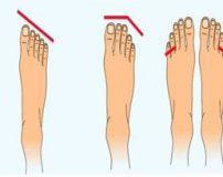 تشخیص شخصیت یک فرد از روی شکل انگشتان پا + تصاویر