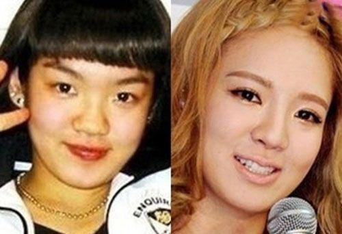 تصاویر قبل و بعد عمل کردن بینی بازیگران کره ای