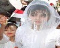 عروس 8 ساله در شب زفاف به علت خونریزی زیاد فوت کرد + تصاویر