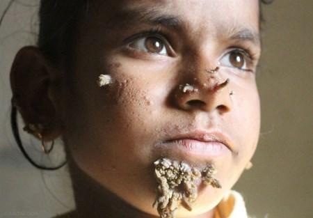 رشد برگ های درخت روی صورت دختر 10 ساله + تصاویر