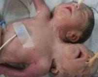 نوزاد وحشتناک دو سر و سه دست چند ساعت زنده نماند + تصاویر