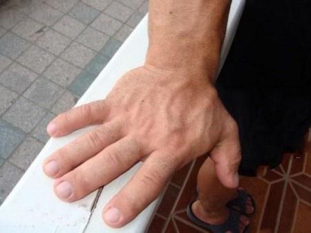 ماجرای زندگی مردی که بزرگترین دست ها را دارد