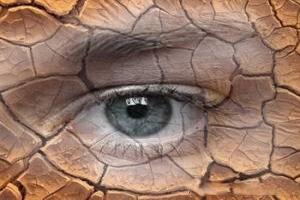 نحوه درمان خشکی و سفیدی دور چشم