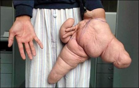 بزرگترین اندام های بدن انسان های مختلف + تصاویر