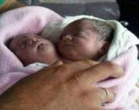 نوزاد وحشتناک دو سر در سوریه به دنیا آمد + تصاویر