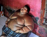 کودک غول پیکر و بسیار چاق در اندونزی