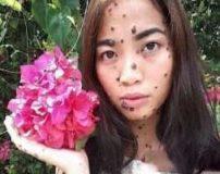 زشت ترین دختر دنیا با صورت خال خالی + تصاویر
