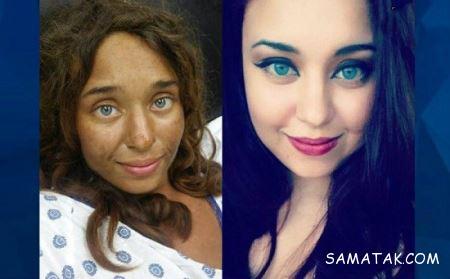 دختر زیبایی که از دست مردان متجاوز به یک جنگل پناه برد + تصاویر