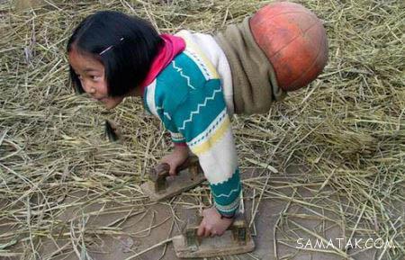 دختری که نصف بدن او را قطع نموده اند ولی زنده است + تصاویر